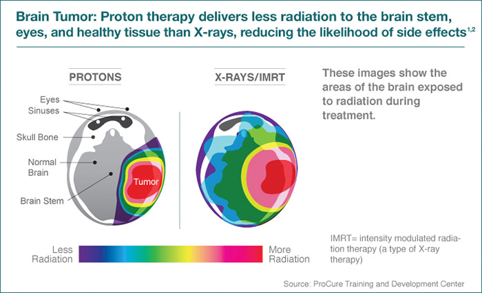 proton therapy for brain tumors