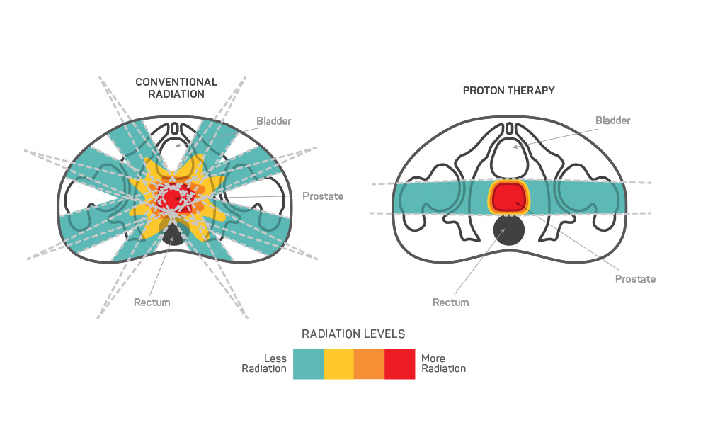 Prostate Cancer Treatment Scca Proton Therapy Center