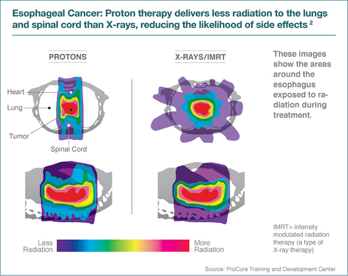 Gastrointestinal Cancer Treatment Scca Proton Therapy Center